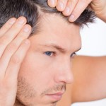 The Reality of Hair Loss for Women and Men