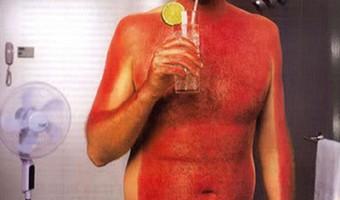 will-ferrell-sunburn