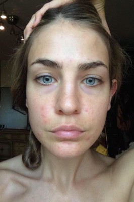 model-with-hormonal-acne